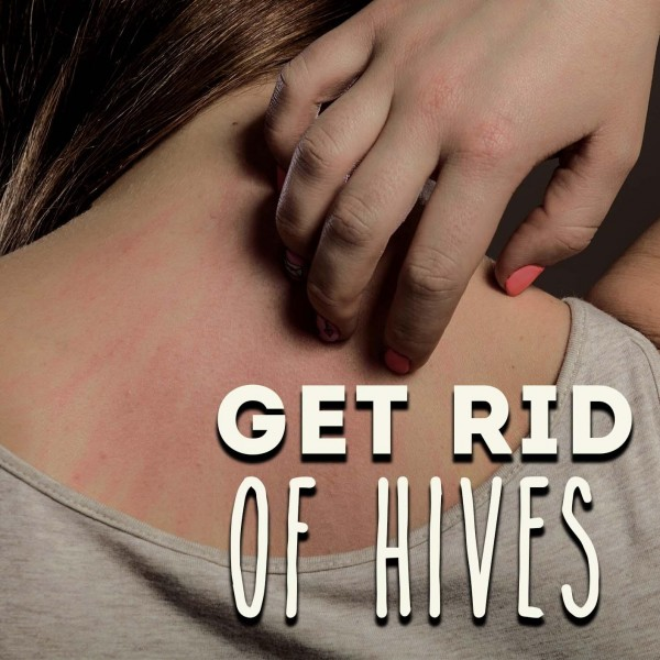 Get Rid Of Hives Hypnosis